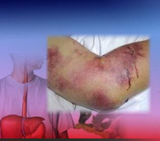 شناسایی دو کانون تب کریمه کنگو در چهارمحال و بختیاری