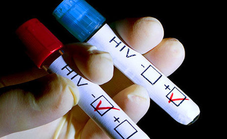 انتقاد از اجباری نبودن «آزمایش ایدز» پیش از ازدواج