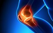 راههای درمانی بیماری آرتروز