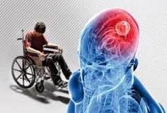 چه کسانی احتمال ابتلا به مثانه نورژنیک دارند  اولین نشانه بیماری MS