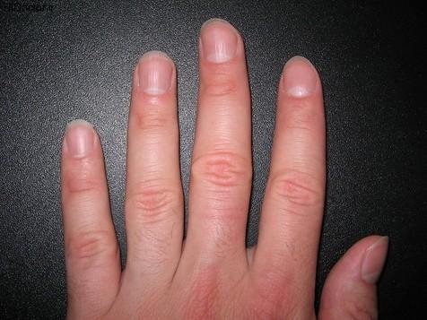 چرا روی ناخن لکههای سفید ایجاد میشود؟+ راه درمان