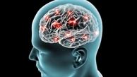 بدترین نوع آلزایمر هم راه درمان پیدا کرد