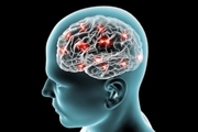 اختلال در خواب از نشانههای اولیه آلزایمر است