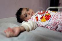 1500 کودک کرمانشاهی دارای سوءتغذیه