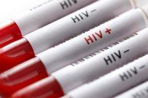255 بیمار مبتلا به ایدز در آذربایجان شرقی شناسایی شد