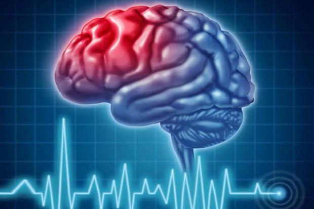 افزایش امید به زندگی در بیماران سکته مغزی