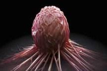 راهى جدید برای درمان سرطان