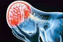 یک سوم بیماران سکته مغزی باتاخیر به پزشک مراجعه می کنند