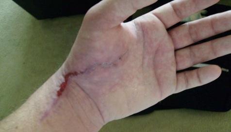 چگونه جای زخمهای کهنه پوست را درمان کنیم؟