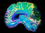 تفاوت مغز افراد خلاق و نابغه با افراد عادی چیست؟