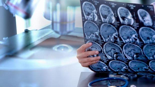 آسیبهای ناشی از ضربه مغزی را جدی بگیرید