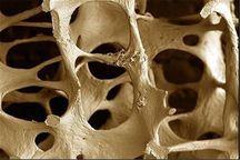 پوکی استخوان با تشخیص به موقع قابل مهار است