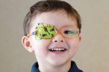 فعالیت ۲۰۰ پایگاه برای اجرای طرح پیشگیری از تنبلی چشم در البرز