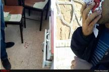 معلم یاسوجی زیر مشت و لگد والدین دانشآموز  بینی معلم شکست و چشماش مجروح شد  شکایت از والدین خاطی