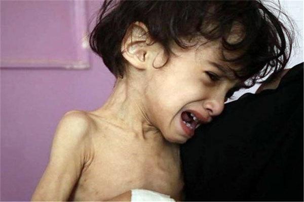حمایت کمیته امداد از قریب 2200 کودک یزدی مبتلا به سوءتغذیه