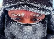 هنگام سرمازدگی چه باید کرد؟