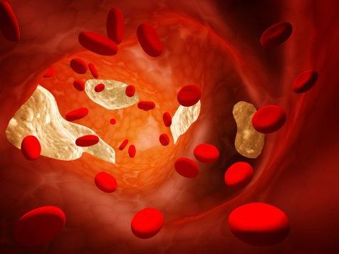 ۱۱ درمان خانگی چربی خون بالا