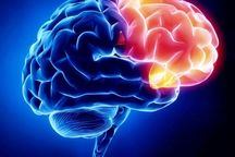 روش های جدیدی برای درمان بیمارهای مغز یافت شده است
