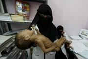 راه حل بحران یمن یک مشت دلار نیست/ اشک تمساح سازمان ملل و عربها به درد یمنی ها نمی خورد