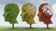 رژیم غذایی می تواند از ابتلا به آلزایمر پیشگیری کند