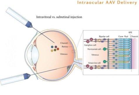 بینا کردن نابیناها با ژن درمانی