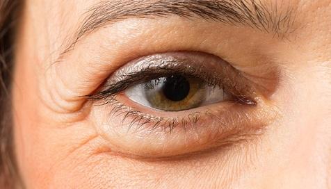 راهکاری برای از بین بردن پف زیر چشم