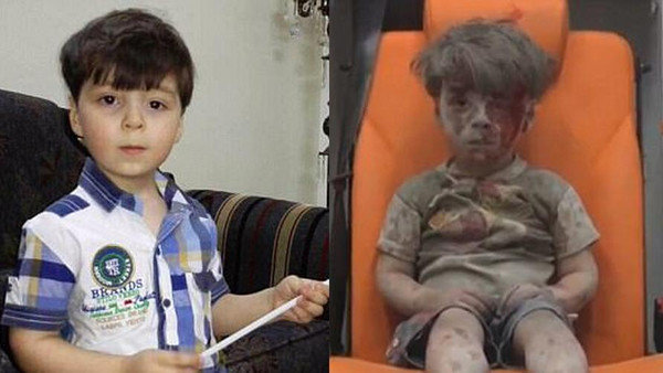عمران، کودک سوری را به یاد میآورید؟ پدرش از سوء استفاده مخالفان از تصویر این کودک میگوید