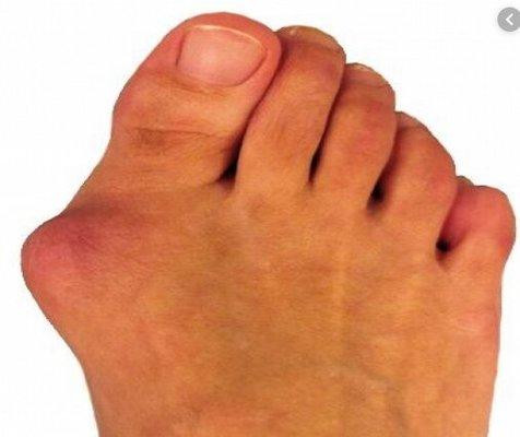 جلوگیری از انحراف انگشت شست پا
