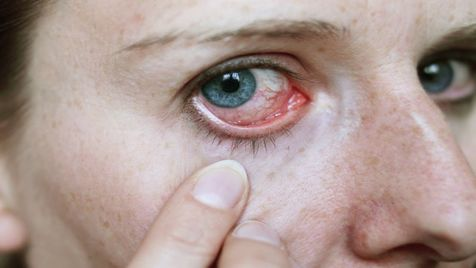 مبتلایان به حساسیت چشم بخوانند
