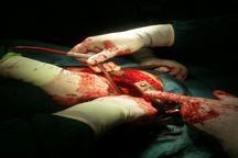 جراحان قلب در مشگین شهر بیمار 52 ساله ای را از مرگ نجات دادند