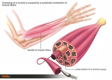 راههایی برای کاهش دردهای عضلانی پس از ورزش