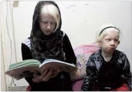 گزارش زندگی خانواده ای با دو کودک معلول