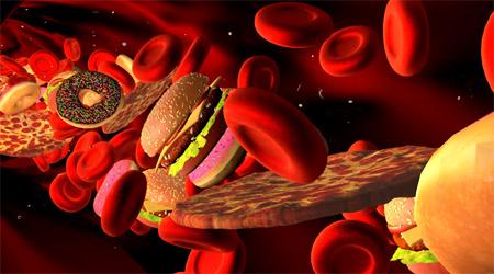 مصرف کلسترول بالا ریسک اختلال حافظه را افزایش نمی دهد