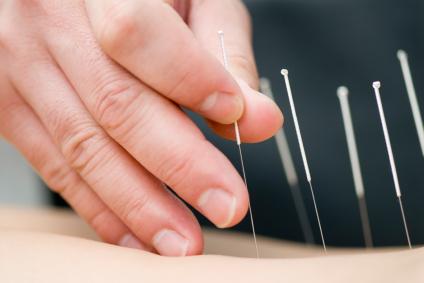 طب سوزنی به تسکین دردهای عضلانی کمک می کند