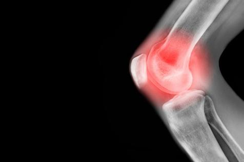 نسخه ای سنتی برای درمان زانو درد