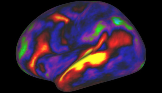 کشف 100 قسمت ناشناخته و جدید در مغز
