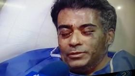 متهمان اسیدپاشی تهران در آستانه آزادی