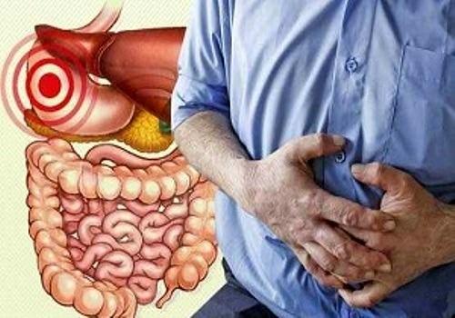 تشریح عوامل ابتلا به بیماریهای التهاب روده  ثبت شبکه ملی بیماریهای التهاب روده در کشور
