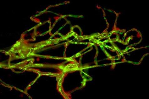 پروتئین عامل سکته مغزی کشف شد