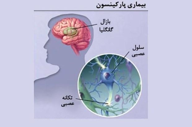خط اول درمان پارکینسون در مشهد راه اندازی شد