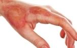 روشهای اشتباه درمان سوختگی