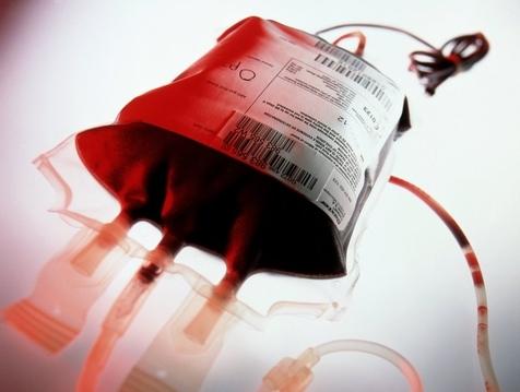 چگونه پلاکت خون اهدا کنیم؟
