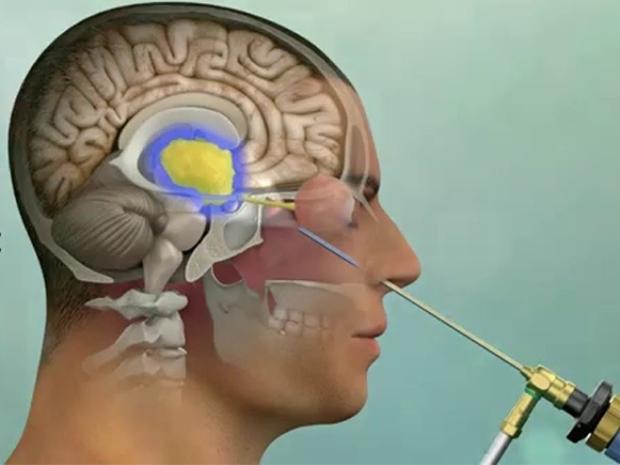 نخستین جراحی هیپوفیز در کاشمر