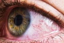 امیدها برای درمان التهابات چشمی در شیراز افزایش یافت