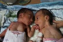 نجات دو قلوها نتیجه تلاش به موقع اورژانس115 و بیمارستان روحانی بابل