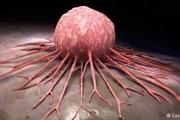 کلسترول بالا رشد تومورهای سرطانی را افزایش میدهد