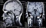 سن مغز میتواند مرگ را پیشبینی کند