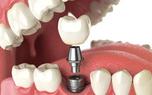 چه کسانی نباید ایمپلنت دندان را انجام دهند؟