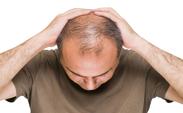 عواملی که باعث ریزش مو می شود؟