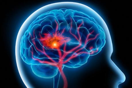 ارتباط نوعی پروتئین در مغز با کاهش علائم آلزایمر